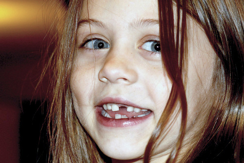 Girl with Missing Teeth